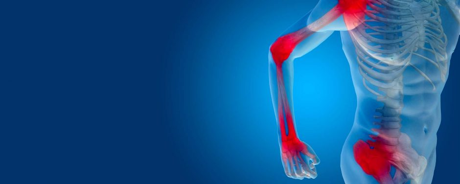 Arthritis Pain Relief – How to Decrease Chances of Arthritis