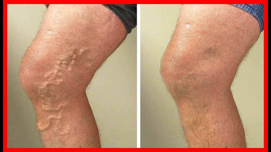 Vein Treatment for Your Arms or Legs